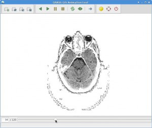 Animation of brain scan slices